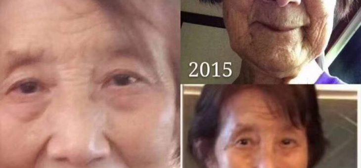 80岁的老婆婆2015年开始用婕斯的变化,