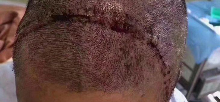 【会员分享】遇到婕斯是福: 做了开颅手术后,伤口很大,从左耳到右耳!!