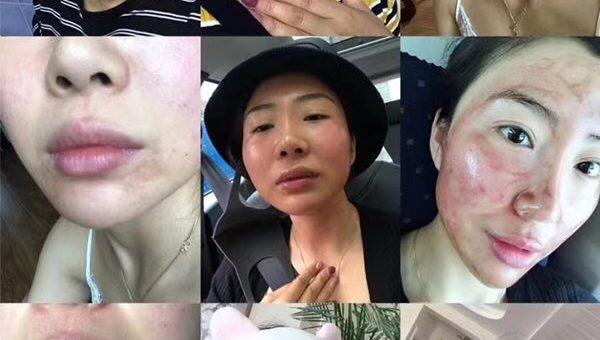 【会员分享】 用了婕斯的大美女 半个月的排毒排铅汞 像换了一张脸 这皮肤真的透亮啦 !