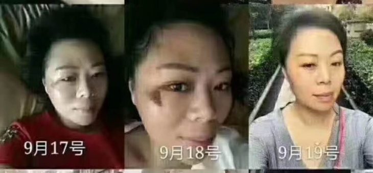 【会员分享】团队郑州的美女陈总 使用 沛泉菁华+精华素 修复脸部创伤